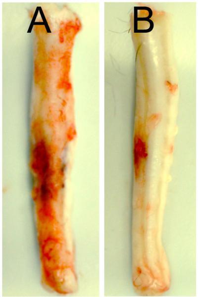 抑制某基因可使脊髓损伤减轻